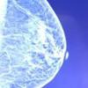 Felgyorsított mellrákszûrés